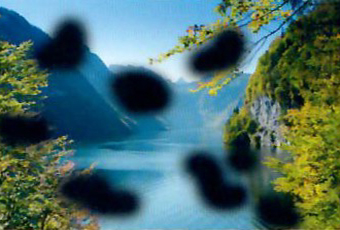zichtsimulatie bij diabetische retinopathie