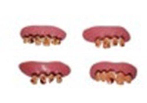 Rotte tandjes (4st)