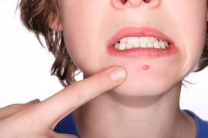 Tieners huidverzorging tegen acne
