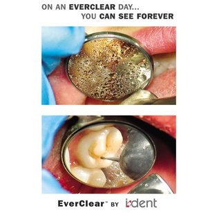 i-Dent EverClear