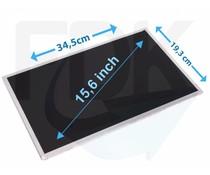 """Laptop LCD Scherm 15,6"""" 1366x768 WXGAHD Glossy Widescreen (Sliml"""