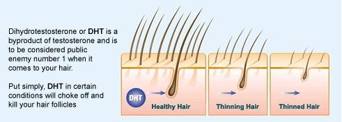 DHT oorzaak van haaruitval