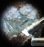 Zakmicroscoop met 45x vergroting
