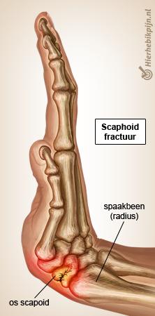 hand-scaphoid-fractuur