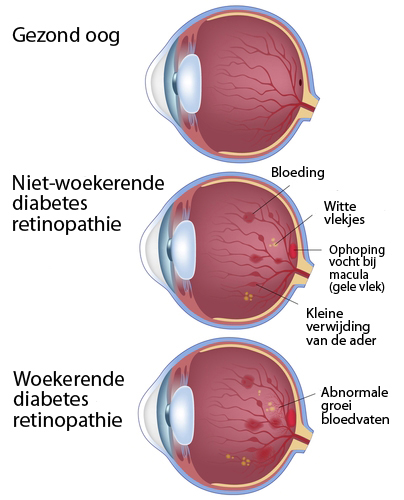asociación de diabetes ogen brandende