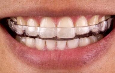 DentalStore Anti knarsbitje (Kinderen)