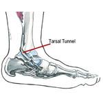 Compressie nervus Tibialis posterior