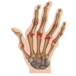 Hand reuma