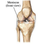 Meniscus blessure kniebrace