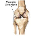 Meniscus blessure