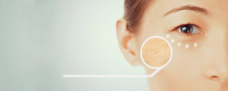 Alles over huidtypes en huidcondities - Deel 1