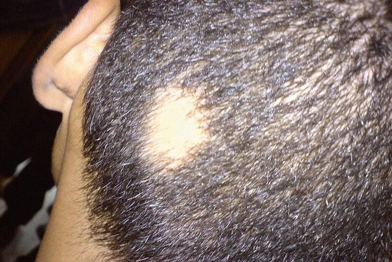 Man getroffen door alopecia areata