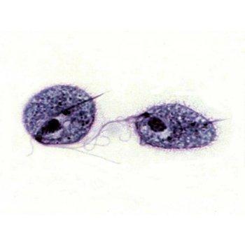 Trichomonas ( Geel )
