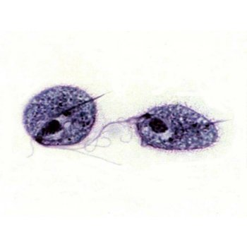 Trichomonas (Gelb)