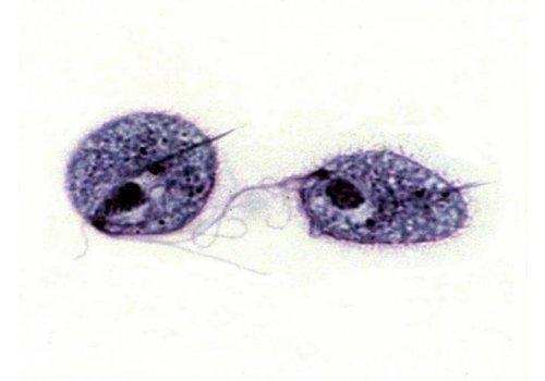 Trichomonas (Yellow)