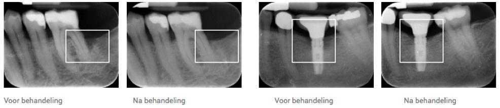 Botaangroei na gebruik oral gel