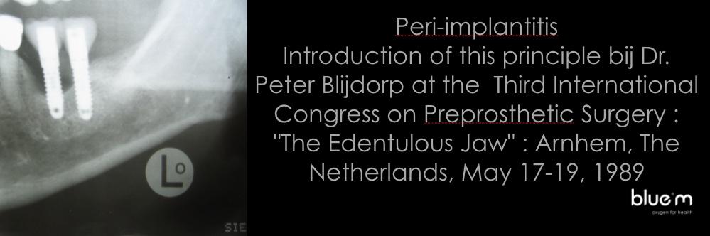 Term peri-implantitis bedacht door Blijdorp