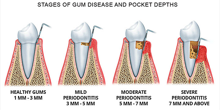 periodontitis stages of gum disease