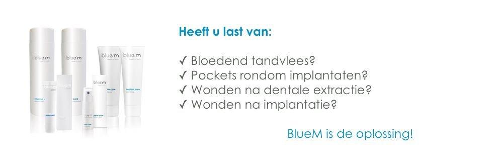 BlueM: beste verzorgingsproduct voor gezonde tanden in implantaten