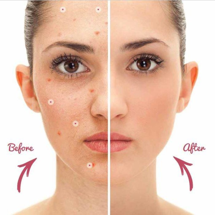 Facial cleansing & treatment
