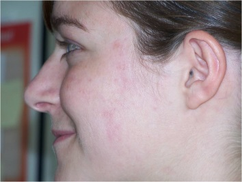 acne na toepassing Actimaris
