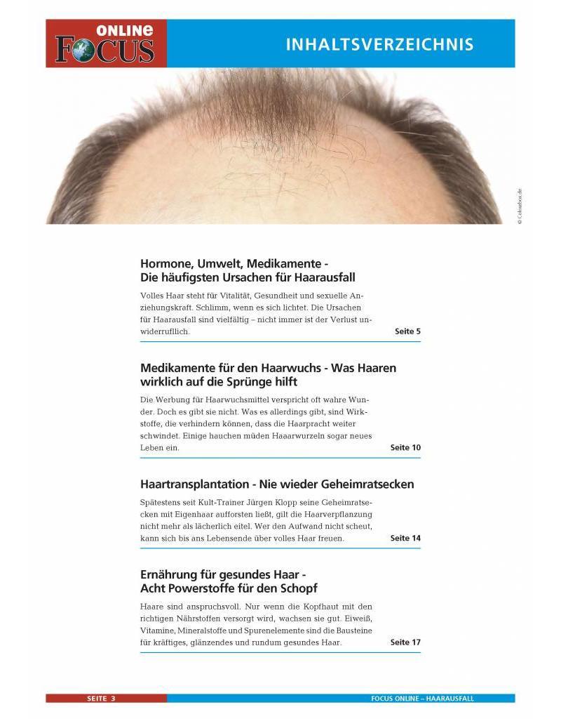 FOCUS Online Haarausfall bei Männern: Wenn die Haare ausfallen