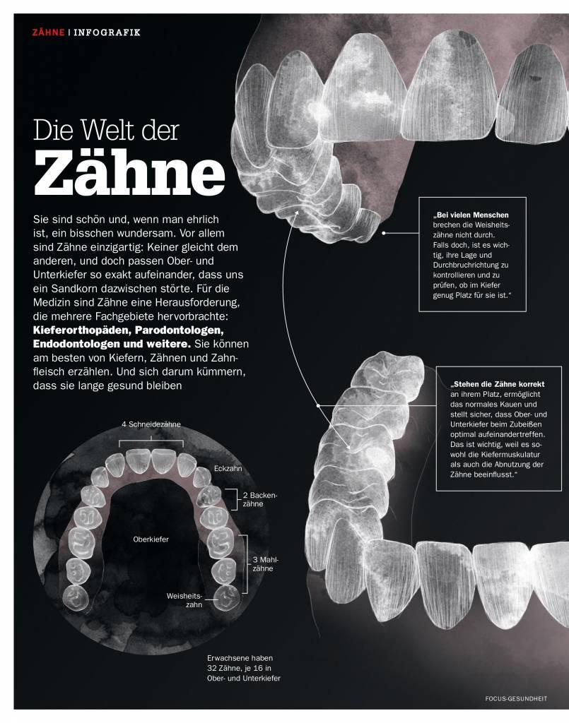FOCUS Implantante, Kronen, Paradontitis - Die neue Hightech-Verfahren der Zahnmedizin
