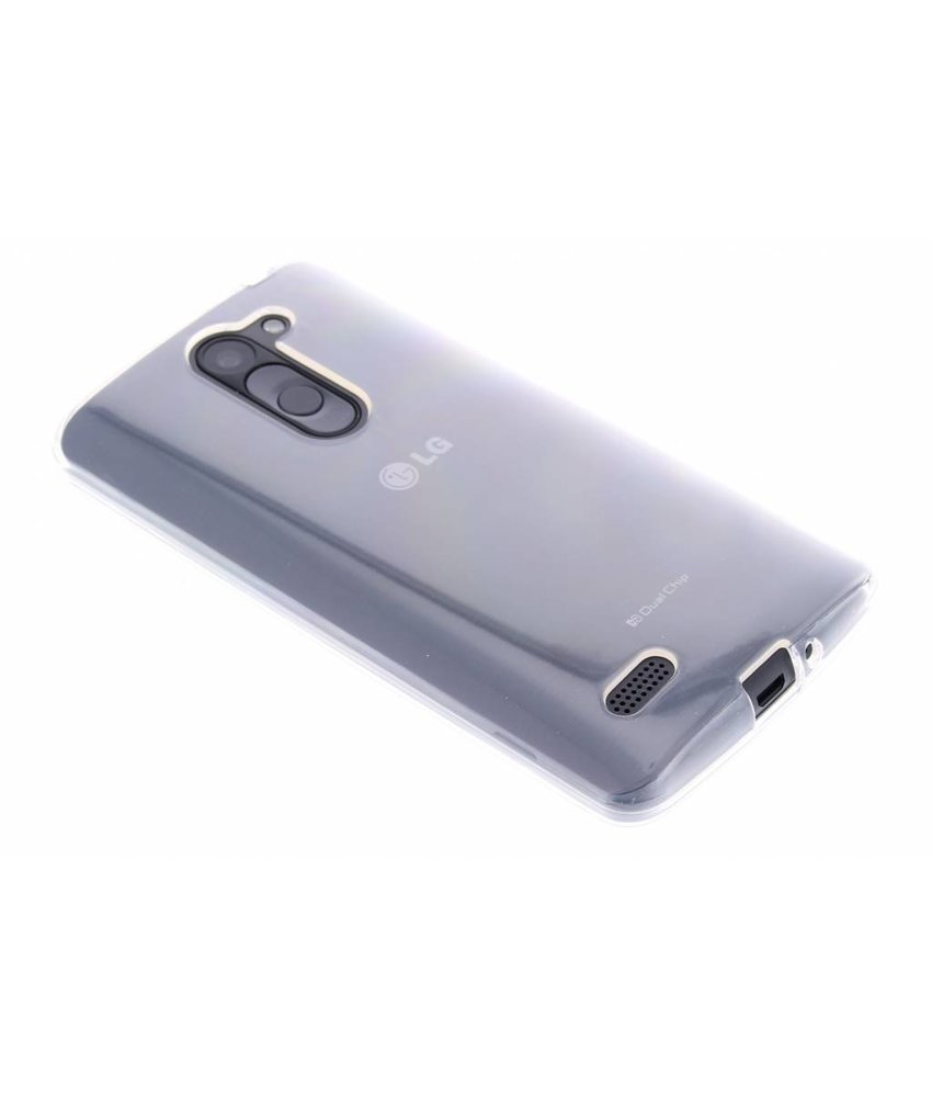 Dolce Vita Smooth TPU Case LG L Bello / L80 Plus