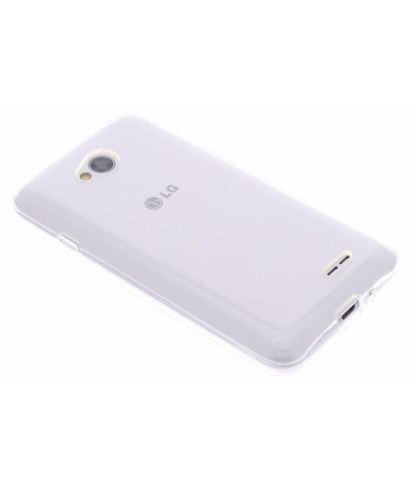 Dolce Vita Smooth TPU Case LG L70 / L65