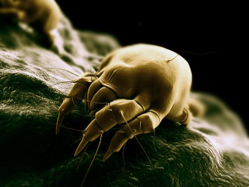 Matras Allergie Huisstofmijt : Huisstofmijt verwijderen uit je matras onmogelijk cara c air