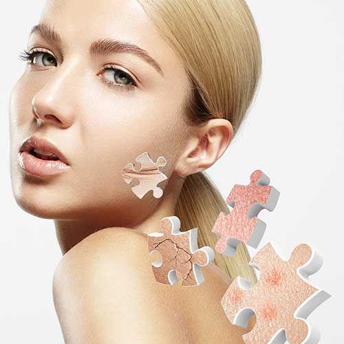 Alles voor de verzorging van een huid met rosacea
