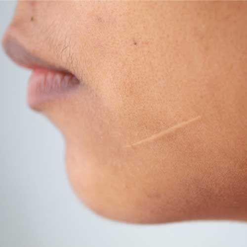 De juiste verzorging voor de huid met littekens