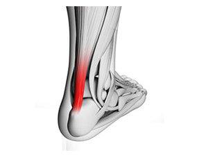 Achillespeesontsteking-achillespees pijn