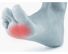 Pijn in de bal van de voet