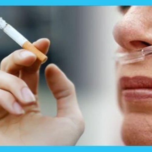 Tabaquismo y oxigenoterapia