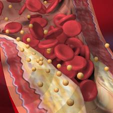 Bloedvaten & cholesterol