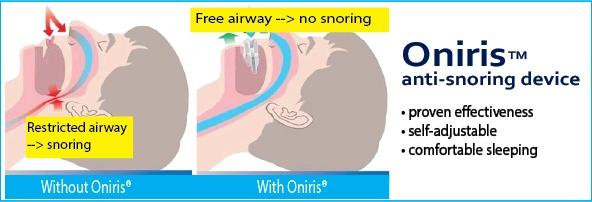 Oniris anti-snoring device
