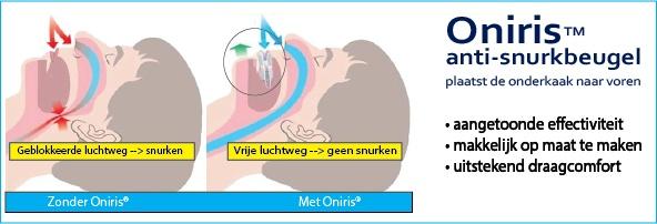 Oniris anti-snurkbeugel