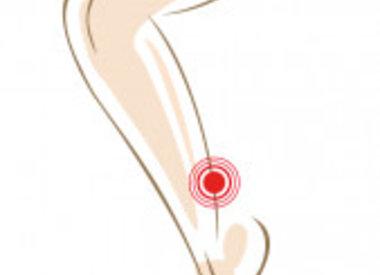 Achillespees blessure