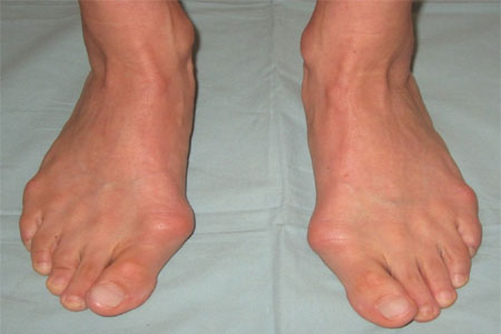 scheefgroeiende grote tenen
