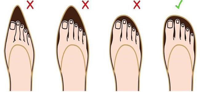 Aangepaste schoenen