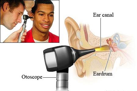 Wat doet een otoscoop?