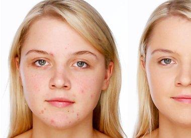 Acne Serums