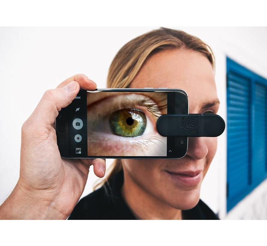 Black eye Basic 3 in 1 smartphone lens