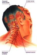 hoofdpijngroot