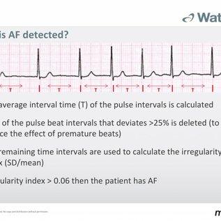 Microlife WatchBP O3 AFIB