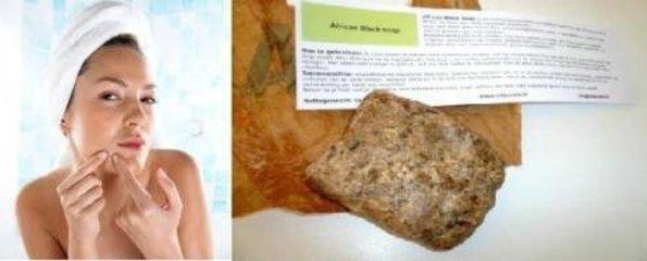 Africanblacksoap voor een gladde huid