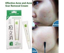 Acne Behandeling Creme