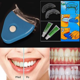 Whitening Kit Home