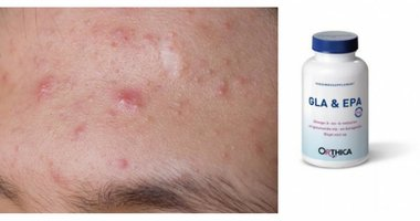 Acne en voedingssupplementen